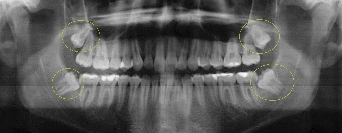 Stem cells within third molars Before