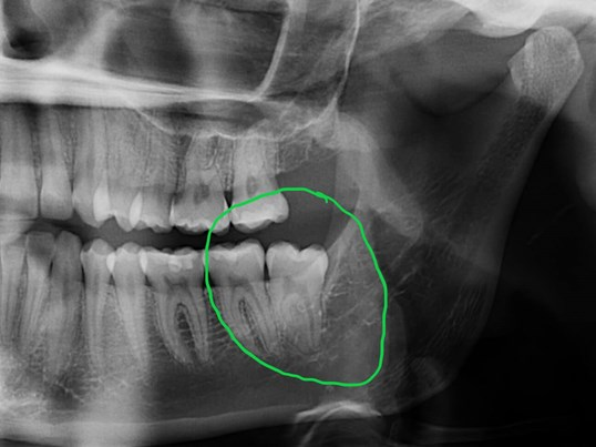 Impacted lower wisdom tooth Before