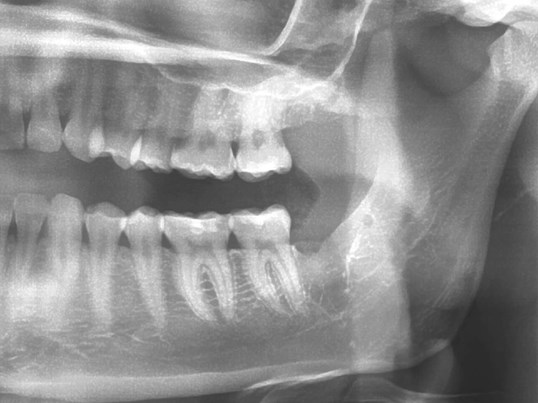 Impacted lower wisdom tooth AFTER