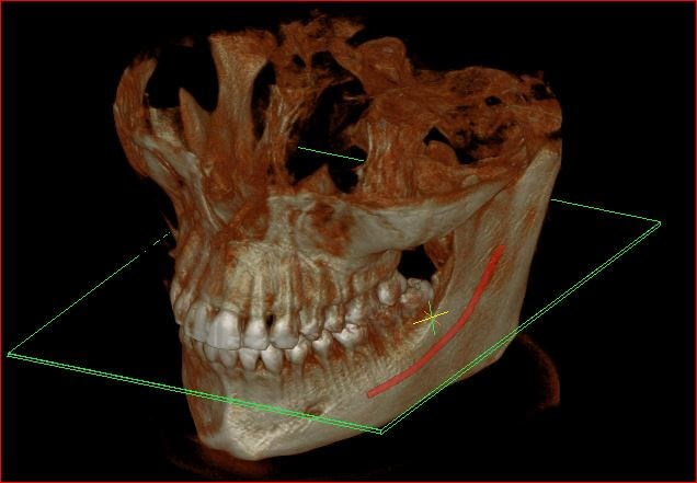 Impacted lower wisdom tooth 3d nerve position