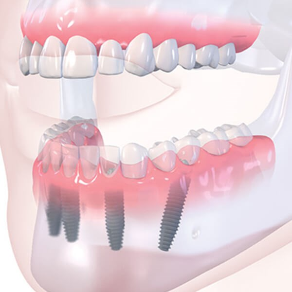 Full Arch Implant Restoration Image