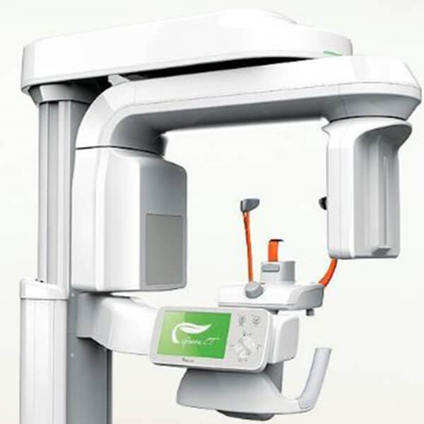 3D CT SCAN IMAGING Image